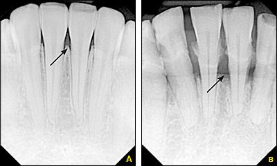 Алвеоларна кост