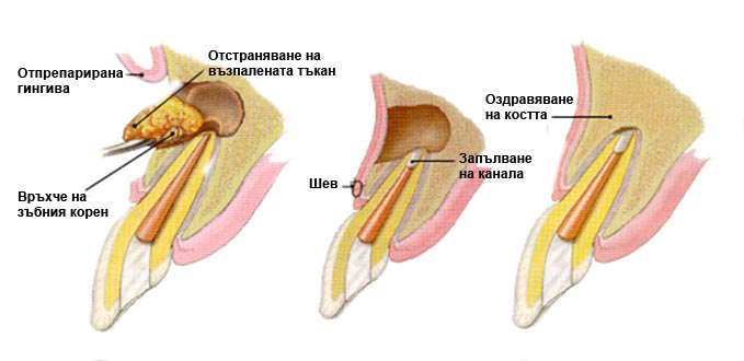 Апикална остеотомия