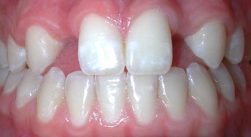 Зъбна агенезия