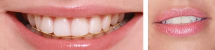Анализ на зъбната дъга