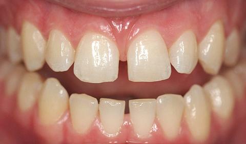 Разстояния между зъбите