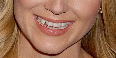 Неправилно подредени зъби