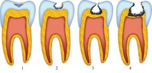 Зъбен кариес