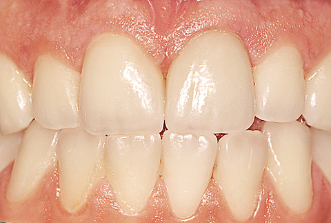 Протетична стоматология