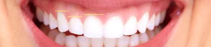 Ниво на гингивата на съседните зъби