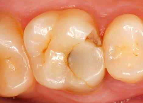 Стари пломба и счупени зъби