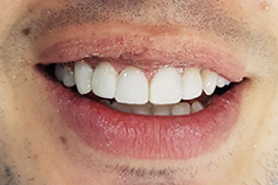 Холивудска усмивка