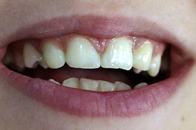 Затваряне на разстояния между зъбите с фотополимер