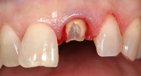 Възстановяване на зъби с големи разрушения