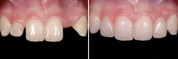 възстановяване на липсващ преден зъб
