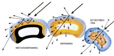 Светлинни характеристики на керамика и металокерамика и естествени зъби