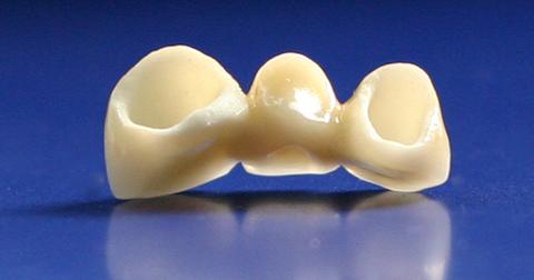 Зъбен мост