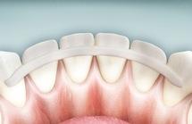 Шиниране на зъбите с фибровлакно