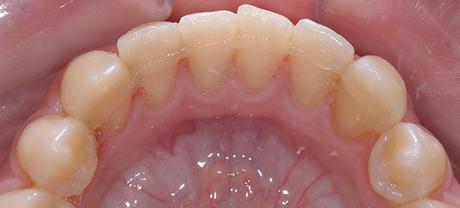 Шиниране на зъбите