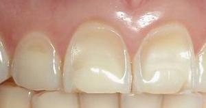 Ерозия на зъбите