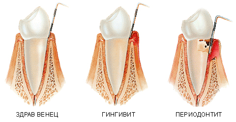 Гингивит периодонтит