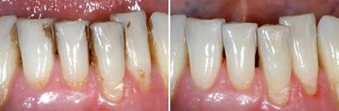 Почистване на зъбна плака и зъбен камък