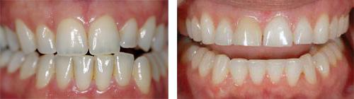 Промени на зъбите при стареене