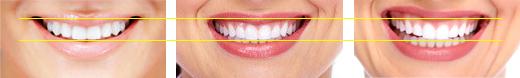 Динамика на горната устна