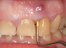 Зъбен абсцес с фистула