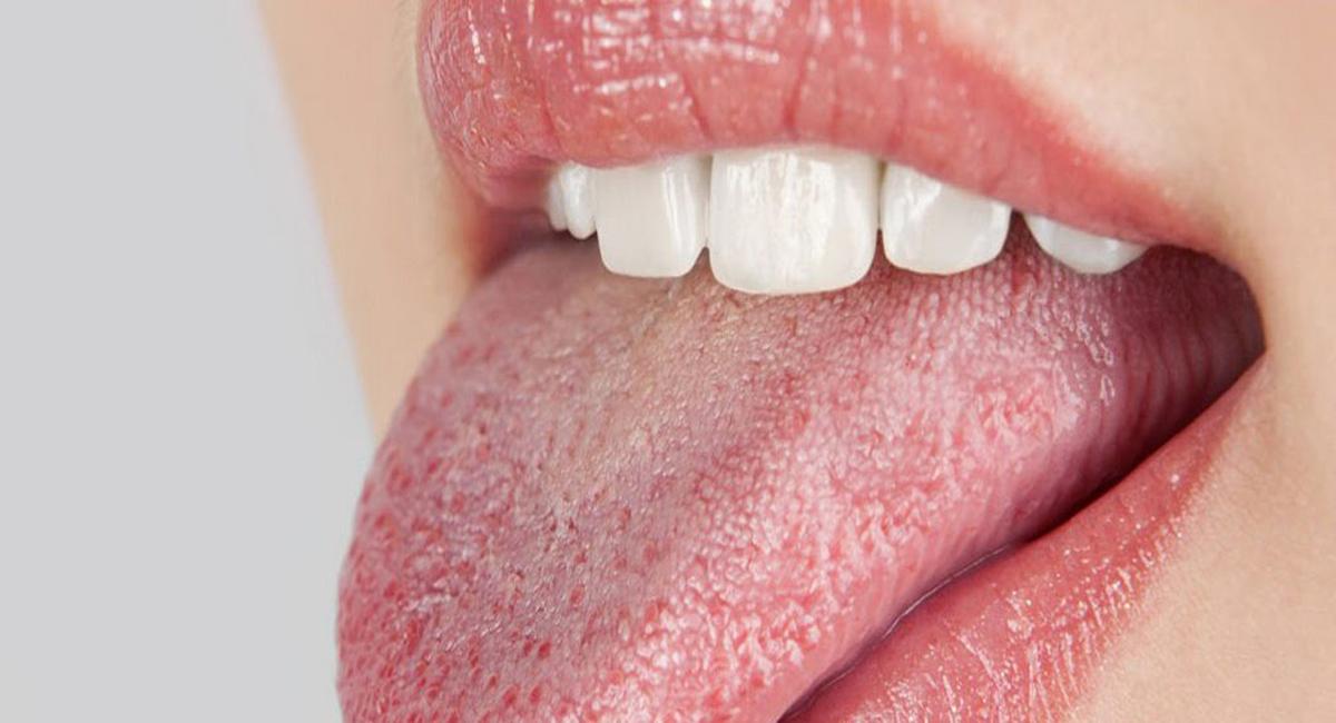 Суха уста - ксеростомия