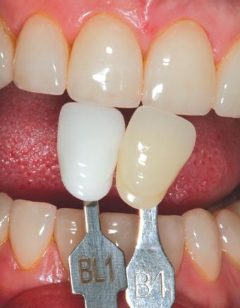 Избелен цвят на зъбите - bleaching