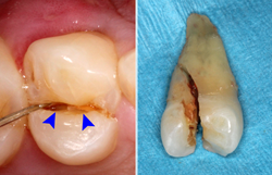 Фрактура на зъб