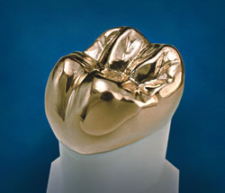 Златна коронка