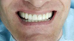 Лечение на абразия с пълна промяна на усмивката