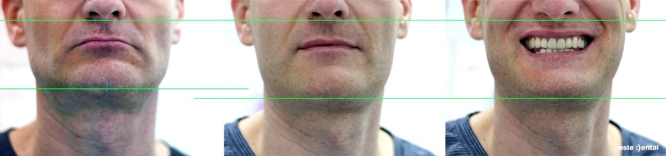 Лечение на абразия - повдигане на височината на захапката