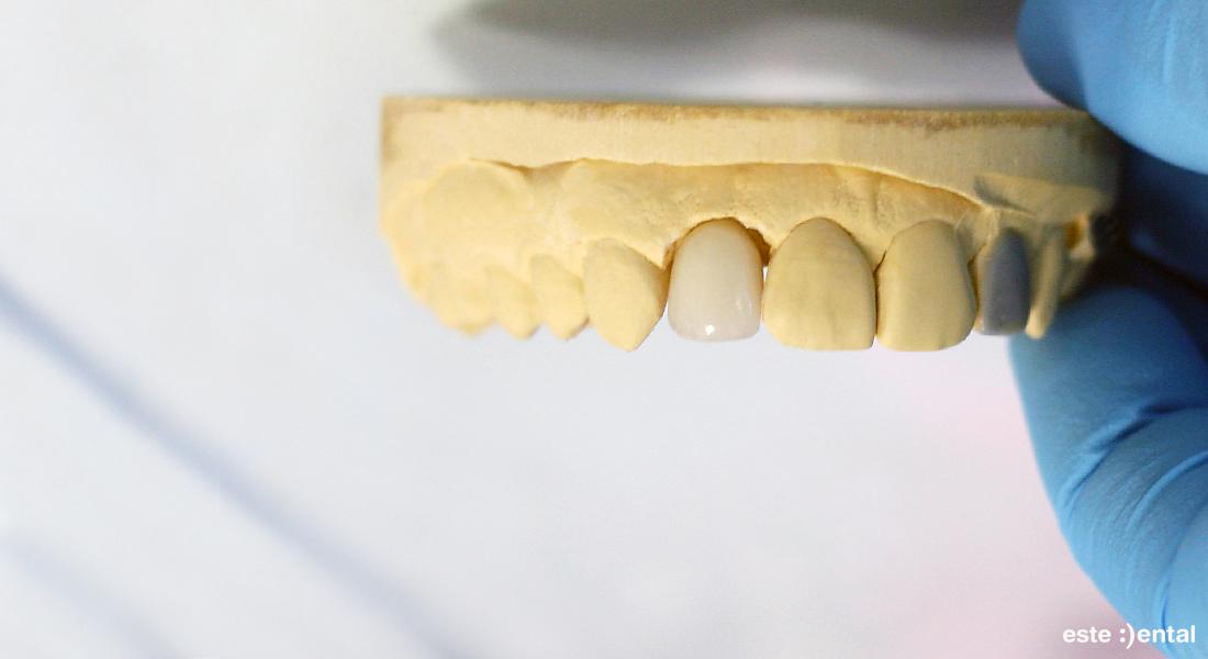Гингивална пластика и порцеланови фасети - порцеланова фасета на работния модел