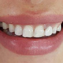 Гингивопластика и холивудска усмивка с металокерамични коронки - изходно състояние