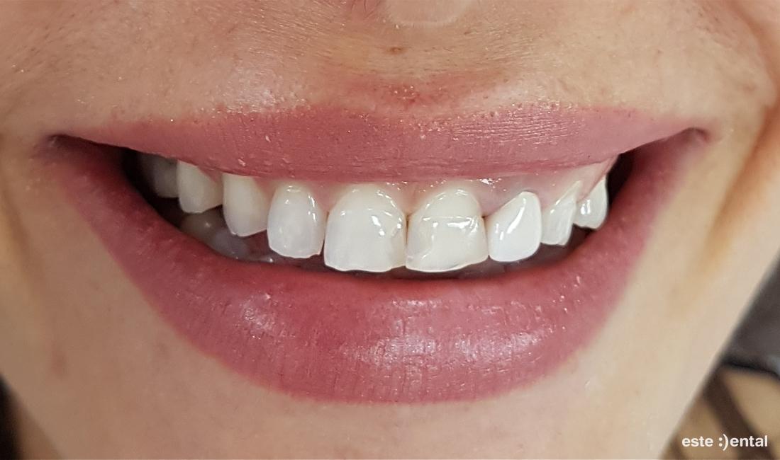 Гингивопластика и холивудска усмивка д металокерамични коронки - изходно състояние