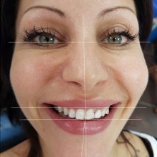 Гингивопластика и холивудска усмивка д металокерамични коронки - лицев анализ