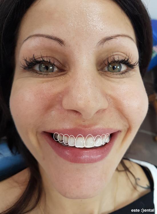 Гингивопластика и холивудска усмивка д металокерамични коронки - модел на бъдещата усмивка