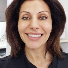 Гингивопластика и холивудска усмивка д металокерамични коронки - mock up