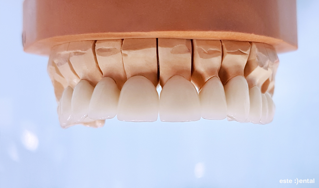 Гингивопластика и холивудска усмивка д металокерамични коронки