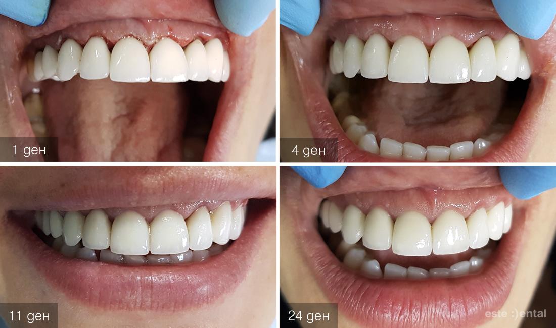 Гингивопластика и холивудска усмивка д металокерамични коронки - регенерация на венеца