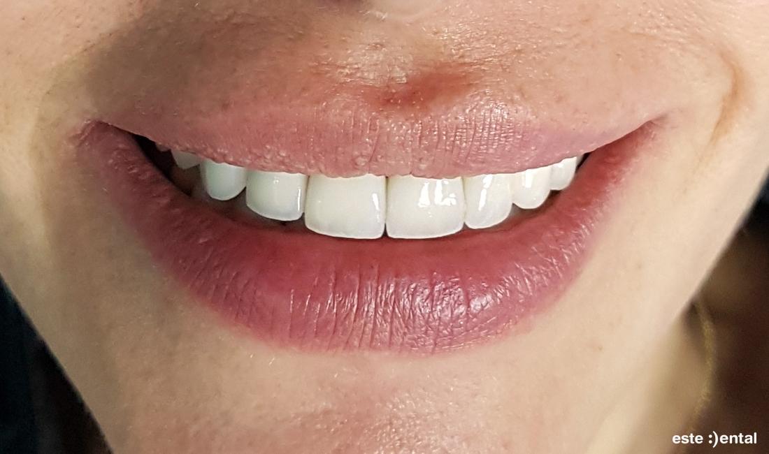 Гингивопластика и холивудска усмивка д металокерамични коронки - краен резултат