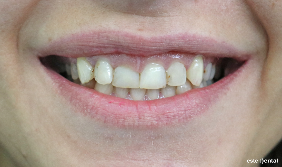 Гингивопластика и порцеланови фасети - изходно състояние