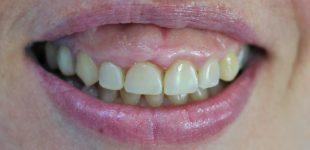 Гингивопластика и холивудска усмивка - изходно състояние
