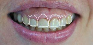 Гингивопластика и холивудска усмивка -проект на бъдещата усмивка