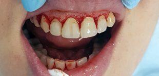 Гингивопластика и холивудска усмивка - фирургично оформяне на венечния ръб