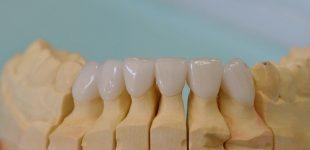 Гингивопластика и холивудска усмивка - порцеланови фасети