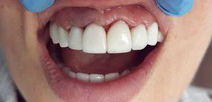 Гингивопластика и холивудска усмивка - състояние на венеца 1 седмица след корекцията