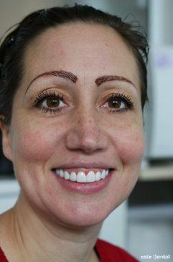 Гингивопластика и холивудска усмивка - краен резултат