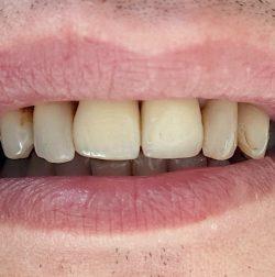 Холивудска усмивка с порцеланови фасети и коронки - изходно състояние