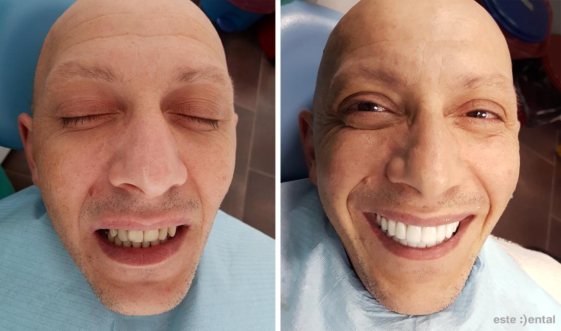 Холивудска усмивка с порцеланови фасети и коронки - краен резултат
