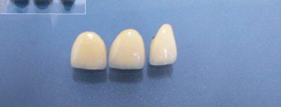 Лечение на абразия - металокерамични коронки