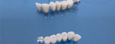 Лечение на абразия - металокерамични мостове